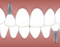 Zahnimplantat Risiko
